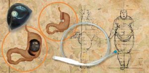 Ожирение у мужчин и женщин: причины и лечение